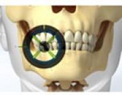 Advances in Dental Technology Make Implants Safer Than Ever